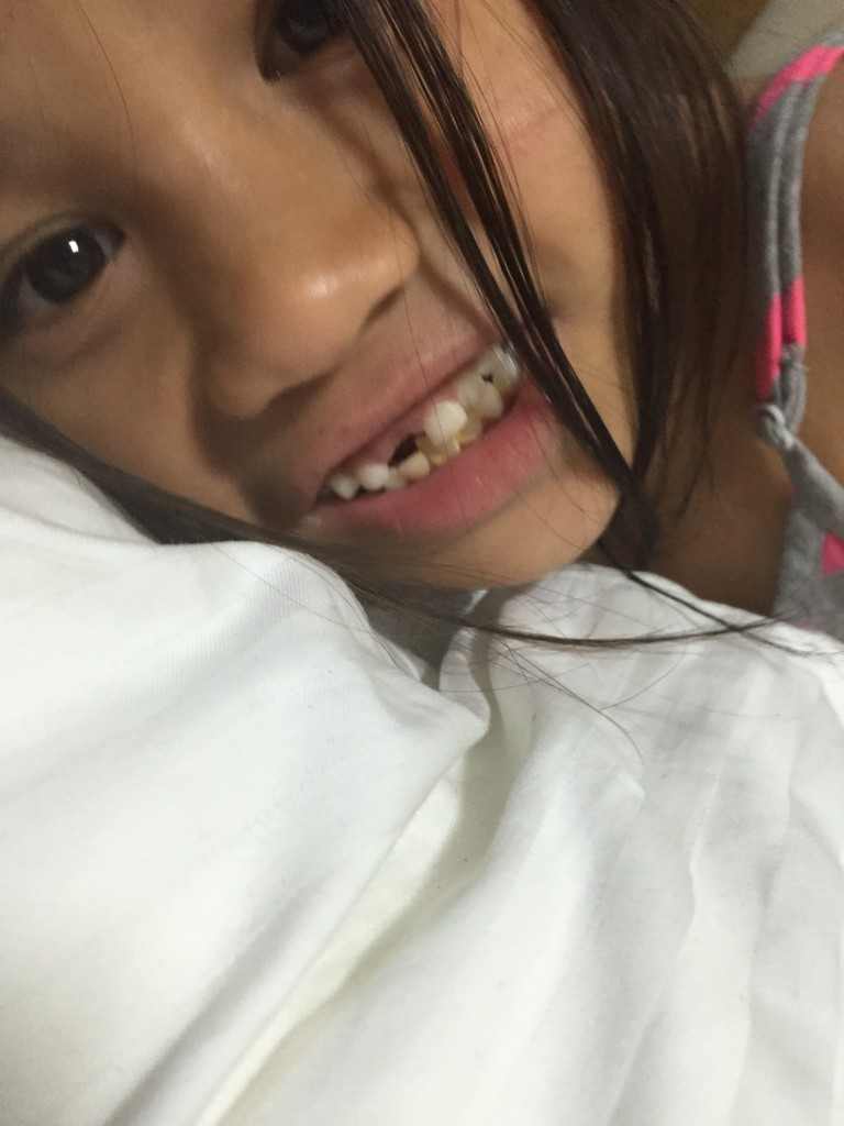 Sophie lost front tooth